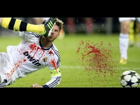 Most Horrific Football Injuries 18+   YouTube